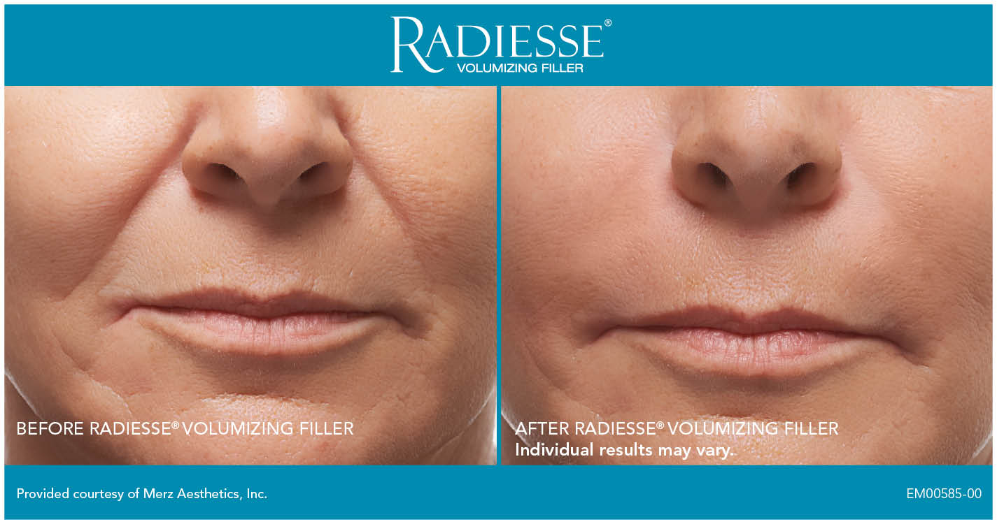 Facial Cosmetics Botox Dermal Fillers Injectables Fair Lawn Nj