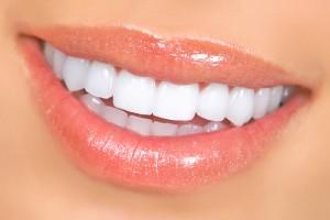dental-post
